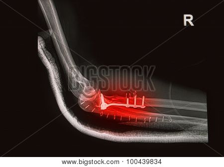 Fracture Elbow, Forearm X-rays Image Showing Plate And Screw Fixation