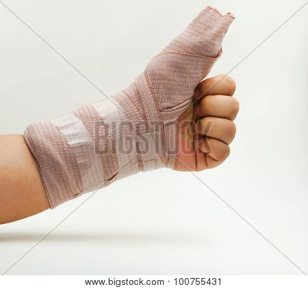 Splint Finger A Broken Bone