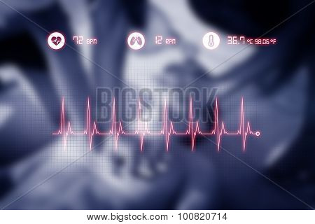 Cardiopulmonary Resuscitation (cpr) To A Drowned Man. Graphic Data.