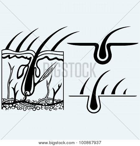 Hair anatomy and hair follicle. Isolated on blue background poster