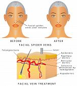 Typical thread veins on face. Facial spider veins on nose and around nostril area. Dermis with varicose veins. Facial Spider Veins or Telangiectasia. Laser Veins Removal poster