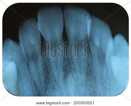 X-Ray Negative of The Healthy Incisor Teeth