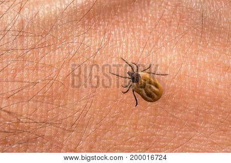 Tick Filled With Blood Crawling On Human Body Skin