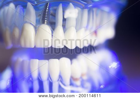 Dental Alignment Teeth Model