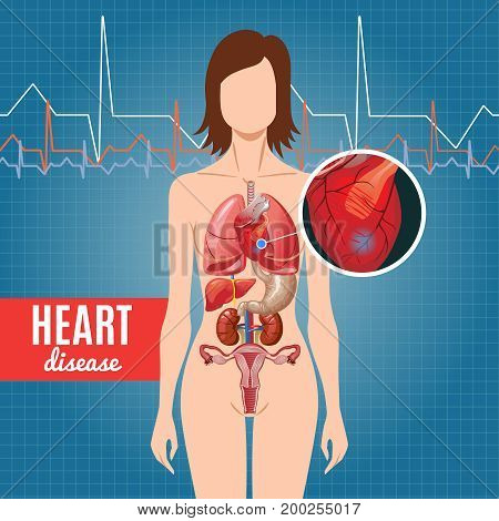 Cartoon heart disease poster with human anatomy parts and internal organs on heartbeat background vector illustration