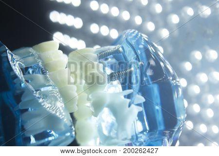 Dentists Dental Teeth Model