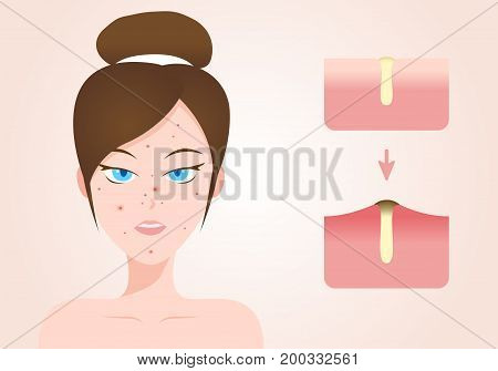 acne and pimple women face with acne stage vector