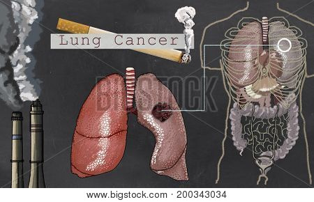 Illustration about Lung Cancer with Cigarette and Torso on Blackboard