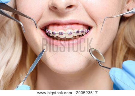 Dentist Tools In Front Of Mouth With Braces