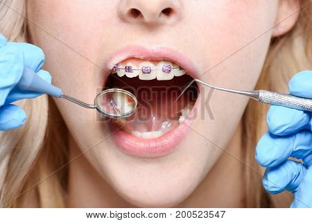 Dentist Using Mirror And Periodontal Probe