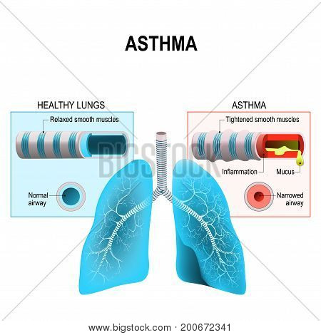 Asthma is a chronic inflammatory disease of the airways that is characterized by narrowing of the airways bronchospasm and coughing. Humans lungs and bronchi