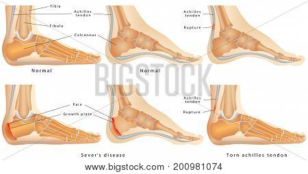 Ankle(side view). Ankle with disease Calcaneal Apophysitis, inflammation of the growth plate of the heel. Skeletal ankles with normal and injured Achilles tendon (tendinitis, tendinosis and torn).