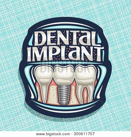 Vector Logo For Dental Implant, Dark Decorative Label With 3 Cartoon Human Teeth In Jaw, Original Le