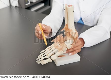 Doctor Orthopedist Shows To The Anatomical Model Of The Foot. Arthritis, Foot Injuries, Flat Feet An