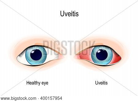 Uveitis Is The Inflammation Of The Uvea (pigmented Layer Between The Inner Retina, Sclera And Cornea