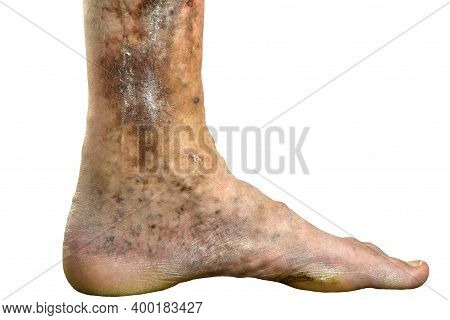 Sore Spotty Leg Of Person, Suffering From Blockage Of Veins, Ulcers, Dermatitis, Eczema Or Other Inf