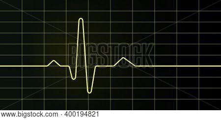 Electrocardiogram Screen And Graph, Medical Illustration, Heart Rate.
