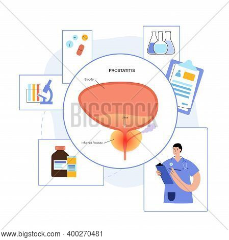 Prostatitis Swelling, Pain, Inflammation In Prostate Gland. Doctors Consult, Set Treatment And Diagn