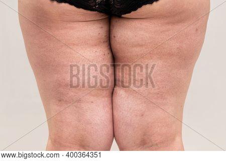 Fat Legs With Acne On Skin, Obesity Female Body