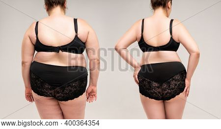 Woman's Body Before And After Weight Loss, Plastic Surgery Concept On Gray Background