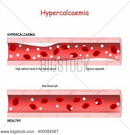 Hypercalcaemia. Hypercalcemia Is A High Calcium Level In The Blood Serum. Healthy Blood Vessel, And