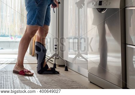 The Woman With A Orthotics On Her Foot Is Standing  In The Kitchen