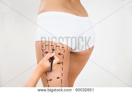 Person Hand Drawing Lines On A Woman's Thigh