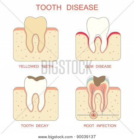tooth  disease,