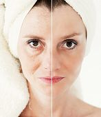 Beauty concept - skin care, anti-aging procedures, rejuvenation, lifting, tightening of facial skin poster
