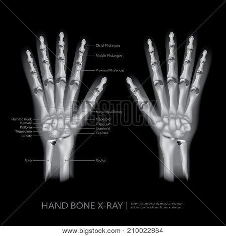 Hand Bone Anatomy X-Ray with Detail Vector Illustration
