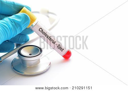 Test tube with blood sample for cholesterol test