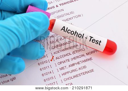 Blood sample with requisition form for alcohol test