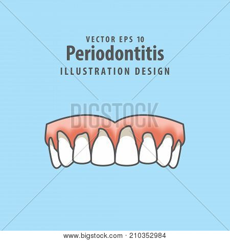 Periodontitis Human Gum Inflammation Illustration Vector On Blue Background. Dental Concept.