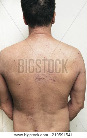 Man having itchy and dry skin problem