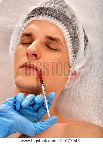 Filler injection for male forehead face. Plastic aesthetic facial surgery in beauty clinic. Injections close up of doctor in medical gloves with syringe injects nasolabial fold drug.