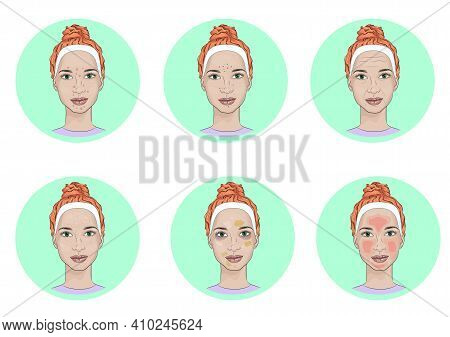 Girl Face With Skin Problems. Common Face Skin Problems