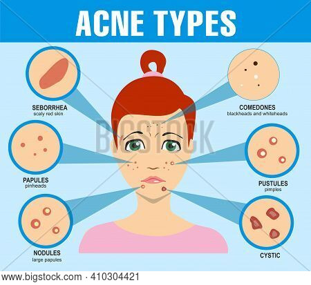 Acne Types, Skin Pimples Blackheads And Face Comedones. Infographics Of Acne. Girl With Types Of Acn