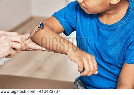 Doctor Uses A Neurological Wartenberg Needle Wheel For A Childs Hand Reflexes Exam. Neurology, Close