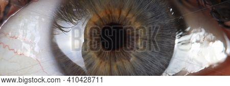Human Eye Pupil And Cornea Close Up. Vision Examination And Eye Disease Treatment Concept