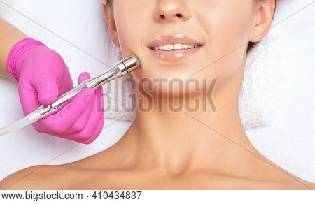 The Cosmetologist Makes The Procedure Microdermabrasion Of The Face Skin And Neck Of A Beautiful Gir