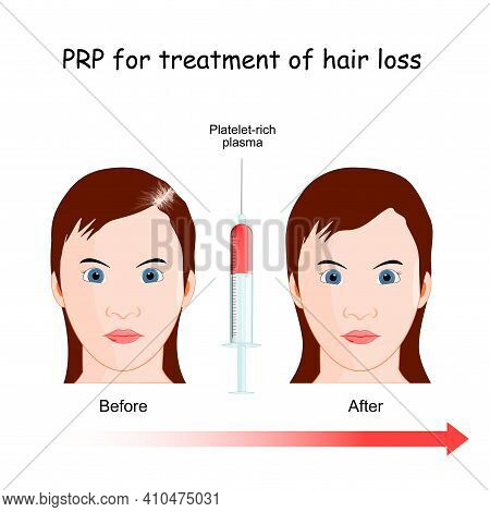 Platelet-rich Plasma. Prp Procedure For Treatment Of Hair Loss. Woman With Alopecia Before And After