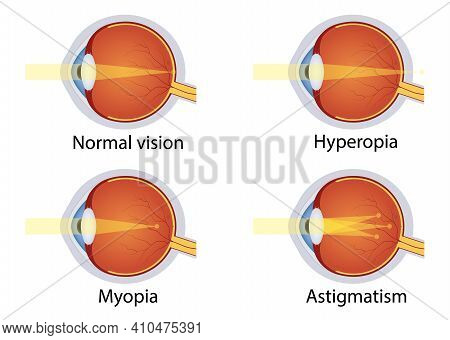 Vision Disorders. Concept Of Eyes Defect. Normal Vision, Hyperopia, Myopia, Astigmatism. Anatomy Eye