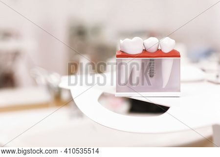 Dentist Dental Teeth Teaching Model Showing Titanium Metal Tooth Implant Screw. Generic Dental Impla