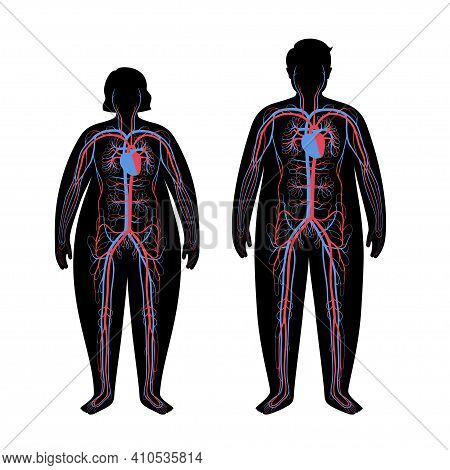 Human Arterial And Venous Circulatory System In Obese Male And Female Body. Blood Vessels Diagram In