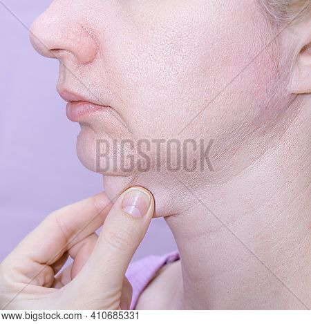 A Profile Of A European Woman Pinching Her Double Chin With Fingers Against Pink Background