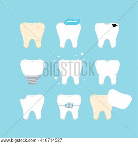 Teeth Dental Icon Set Isolated. Tooth Collection - Plaque, Caries Hole, Implant, Clean Healthy, Crow