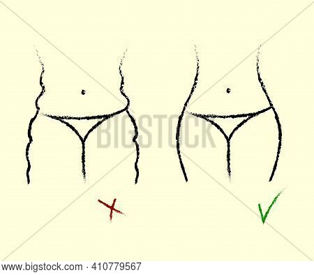 Weight Loss. Linear Silhouette Of A Woman. Cellulite. Vector Illustration.
