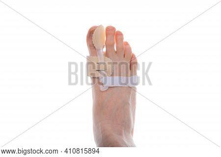 The Onset Of Degenerative Disease On The Leg Due To Poor Footwear In An Elderly Man