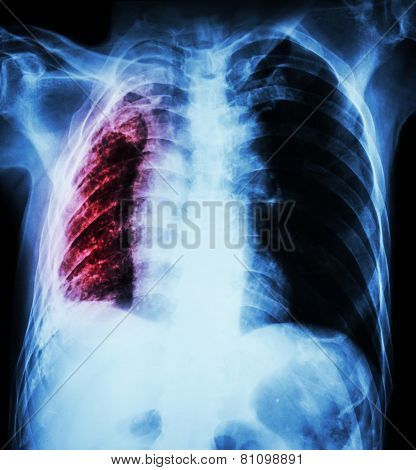 Pulmonary Tuberculosis .   Chest X-ray : Right Lung Atelectasis