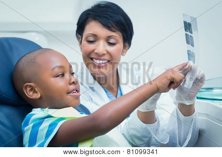 Female dentist showing young boy his mouth x-ray in the dentists chair